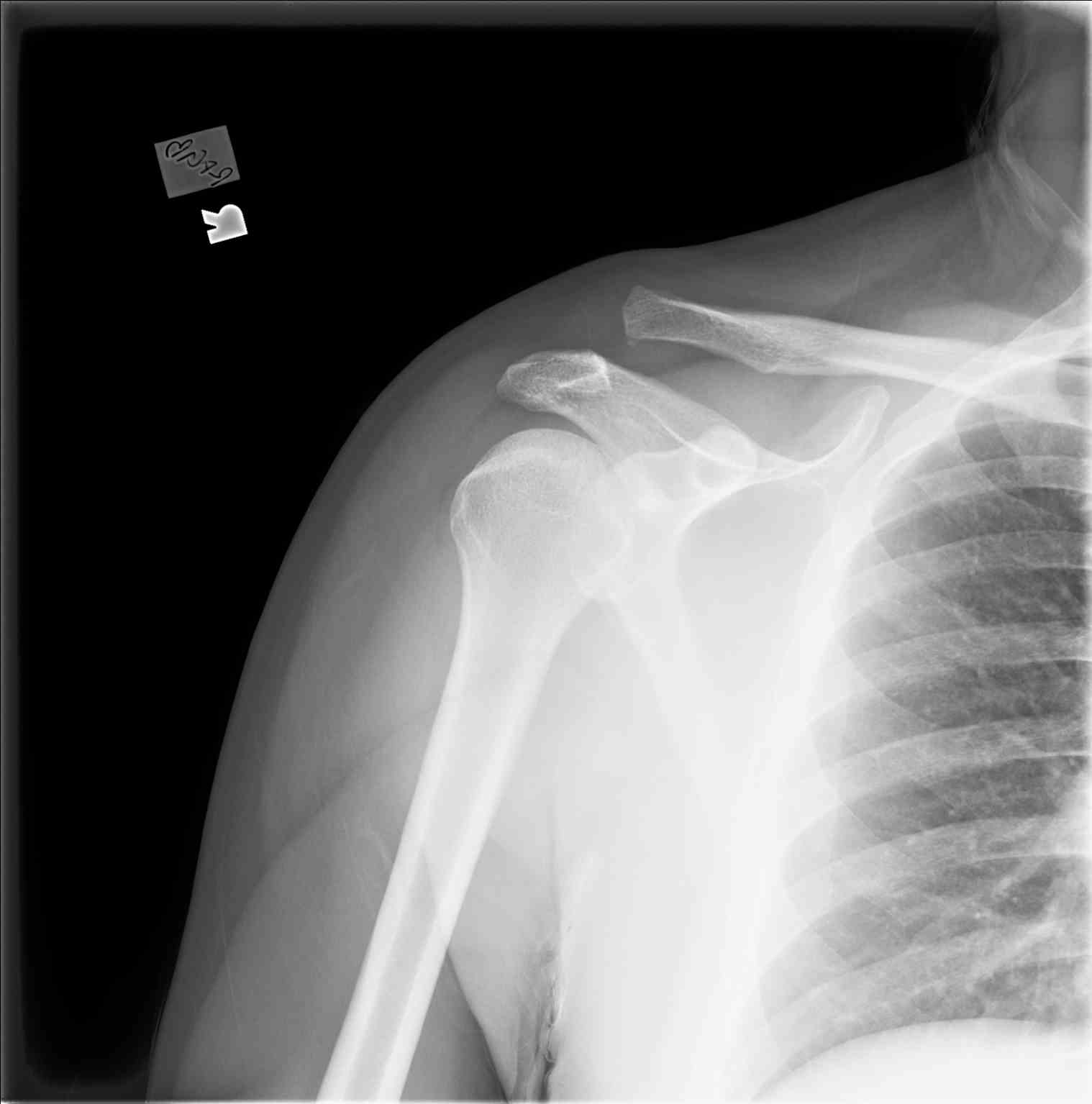 Radiograph Shouder AC Joint Separation/Injury Type III/IV