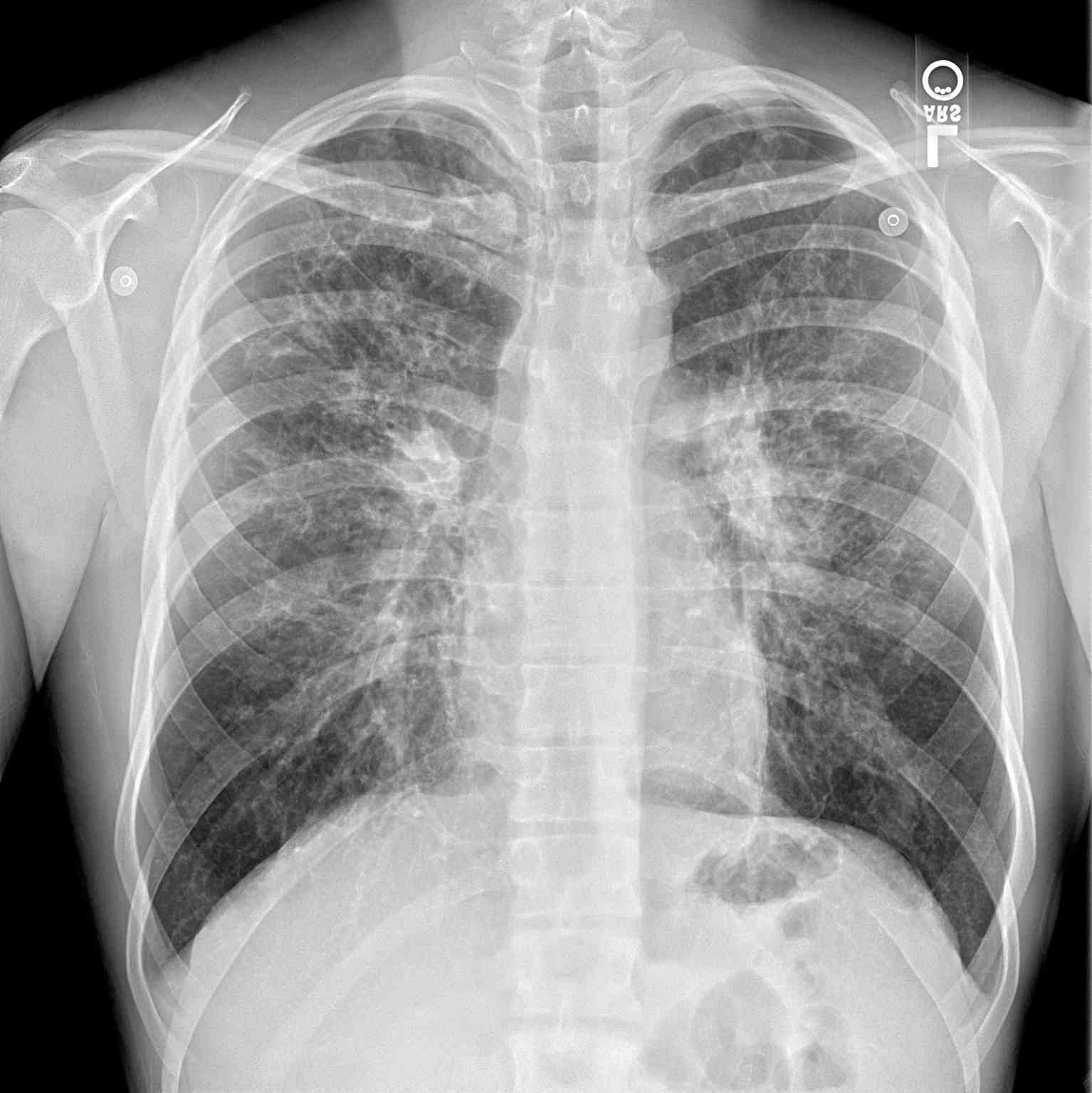 PA Chest Radiograph Cystic Fibrosis