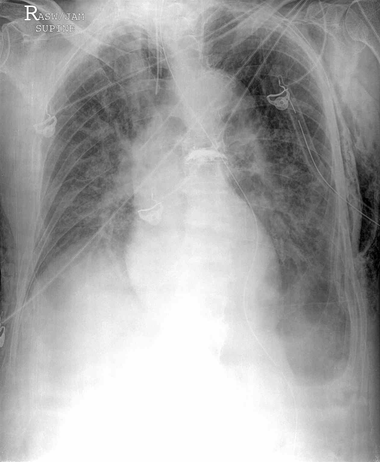 Portable Chest Radiograph Left Deep Sulcus Pneumothorax