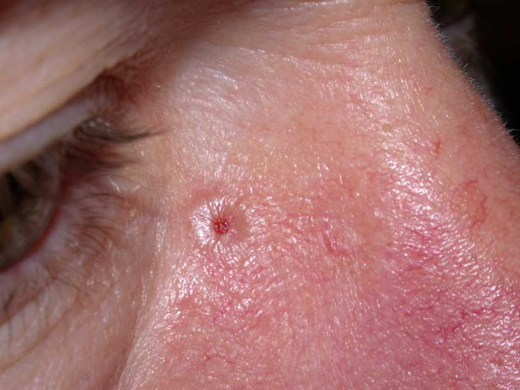Basal Cell Carcinoma, Nodulocystic