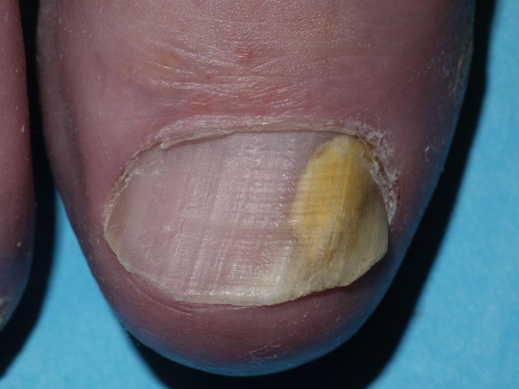 Lateral Onychomycosis