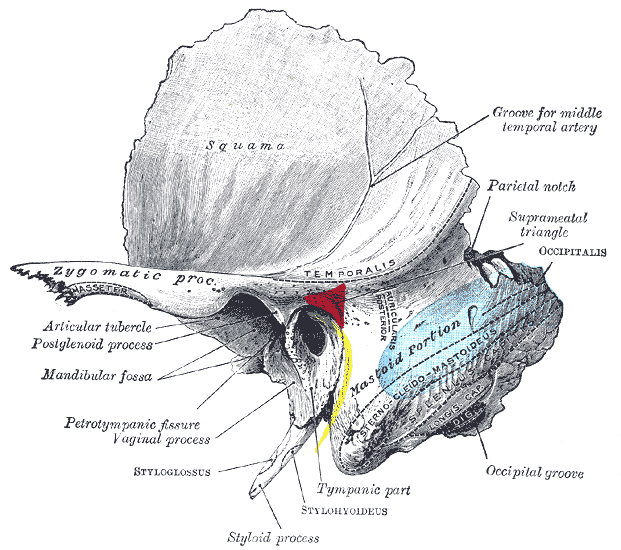 Left temporal bone showing surface markings for the tympanic antrum in red, transverse sinus in blue, and facial nerve in yellow