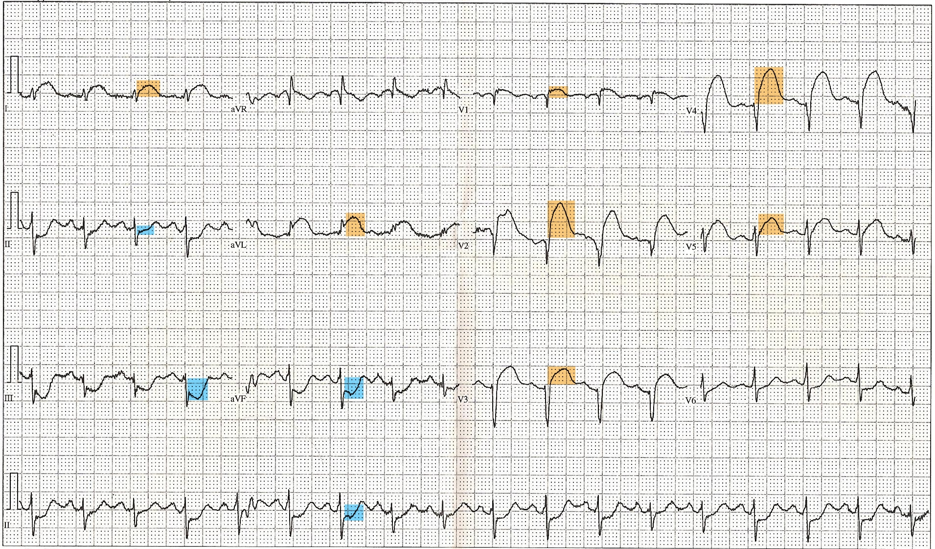 12 Lead ECG EKG showing ST Elevation (STEMI), Tachycardia, Anterior Fascicular Block, Anterior Infarct, Heart Attack. Color Key: ST Elevation in anterior leads=Orange, ST Depression in inferior leads=Blue