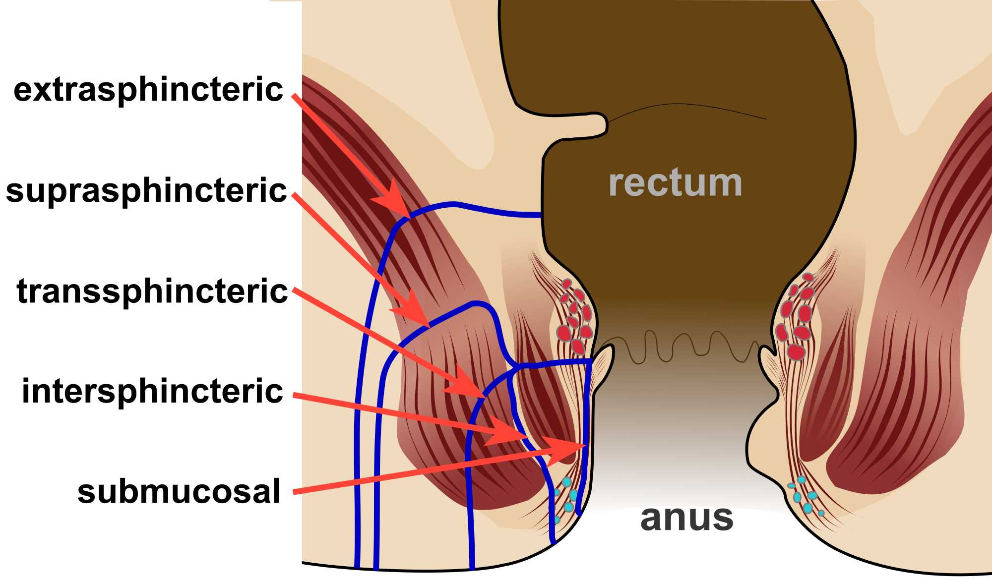 Different types of anal fistula