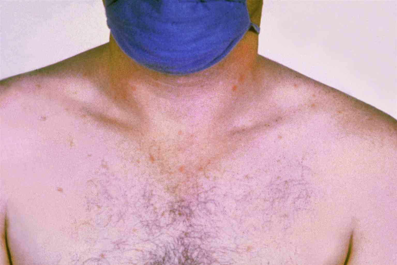 Rose spots on the chest of a patient with typhoid fever due to the bacterium Salmonella typhi. Symptoms of typhoid fever may include a sustained fever as high as 103 to 104 F (39 to 40 C), weakness, stomach pains, headache, loss of appetite. In some cases, patients have a rash of flat, rose-colored spots.