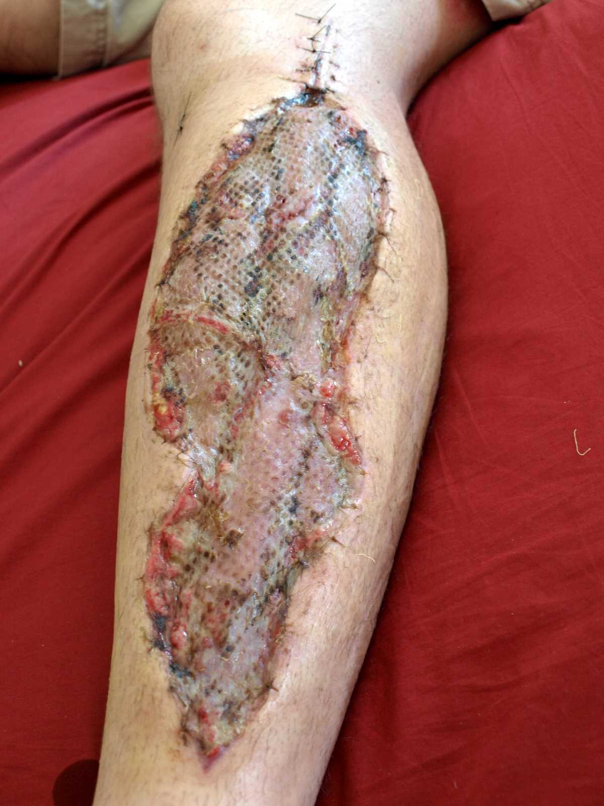 A fasciotomy one week after a skin graft had been applied. Wound was covered with a skin graft once pressure was relieved