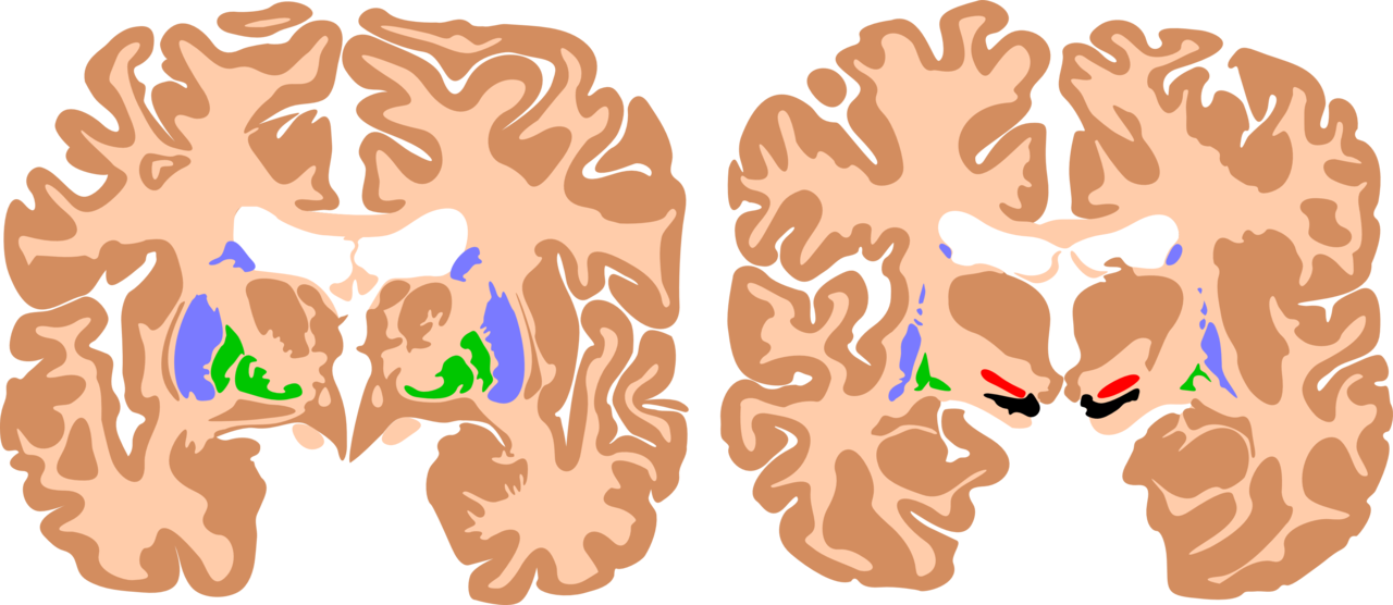 The basal ganglia are instrumental in motor function. Damage to these areas results in athetoid/ dyskinetic cerebral palsy (ADCP).