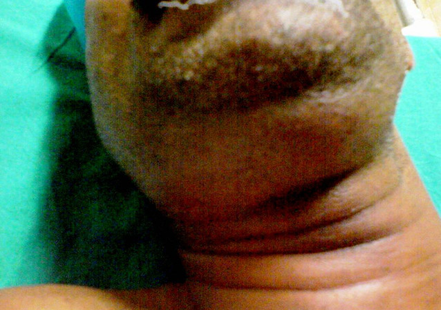 Swelling in the submandibular area in a patient with Ludwig's angina. This made it difficult for the assessment of neck extension.