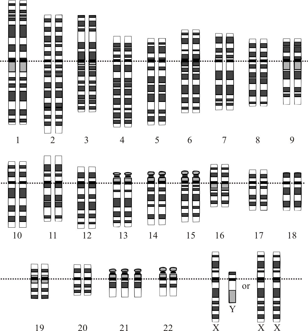 Karyotype for trisomy Down syndrome: Notice the three copies of chromosome 21
