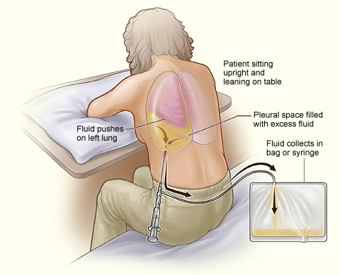 The illustration shows a person having thoracentesis. The person sits upright and leans on a table. Excess fluid from the pleural space is drained into a bag.
