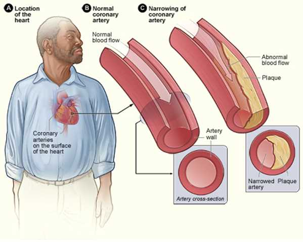 Atherosclerosis as a result of coronary heart disease.