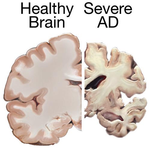 Healthy Brain compared to a brain suffering from Alzheimer's Disease