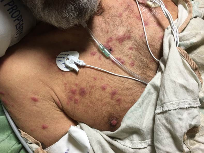 Sick ICU patient with underlying myelodysplastic syndrome presented with multiple tender papules and plaques. Some lesions have targetoid and others have pseudo-vesicular appearance.