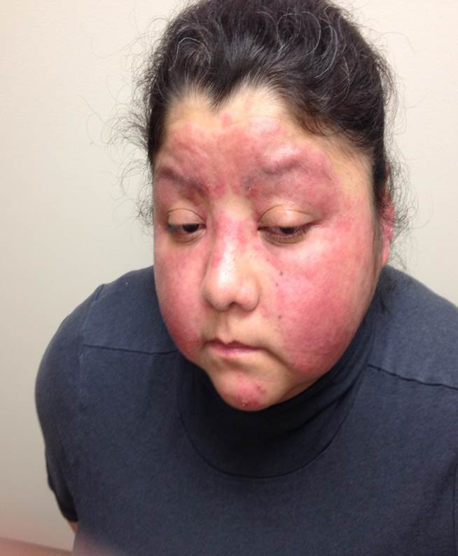 Rash on the face present on bilateral cheeks with sparing of the nasolabial folds