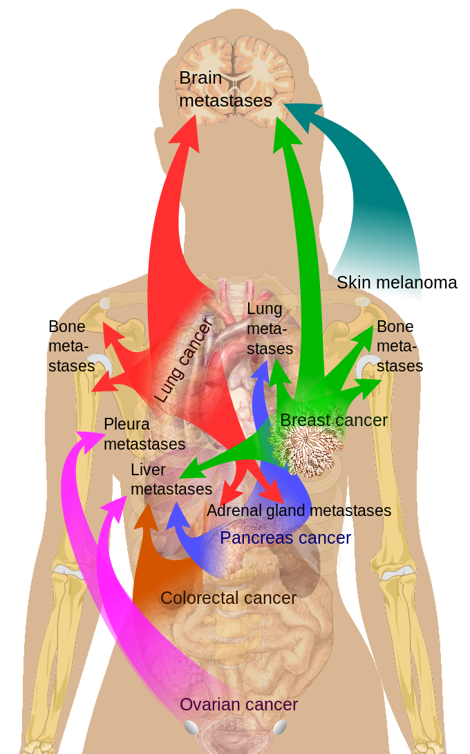 Main sites of metastases for common cancer types, Brain, Skin Melanoma, Bone Metastases, Lung Metastases, Breast Cancer, Adrenal gland metastases, Pancreas cancer, Colorectal cancer, Ovarian cancer