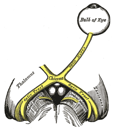 The left optic nerve and the optic tracts. A Marcus Gunn pupil indicates an afferent defect, usually at the level of the retina or optic nerve. Moving a bright light from the unaffected eye to the affected eye would cause both eyes to dilate, because the ability to perceive the bright light is diminished.