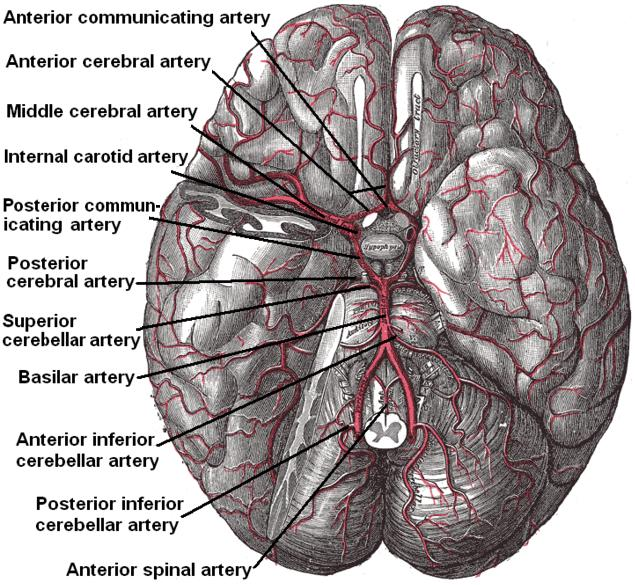The brain and arteries at base of the brain. Circle of Willis is formed near center. The temporal pole of the cerebrum and a portion of the cerebellar hemisphere have been removed on the right side. Inferior aspect (viewed from below).
