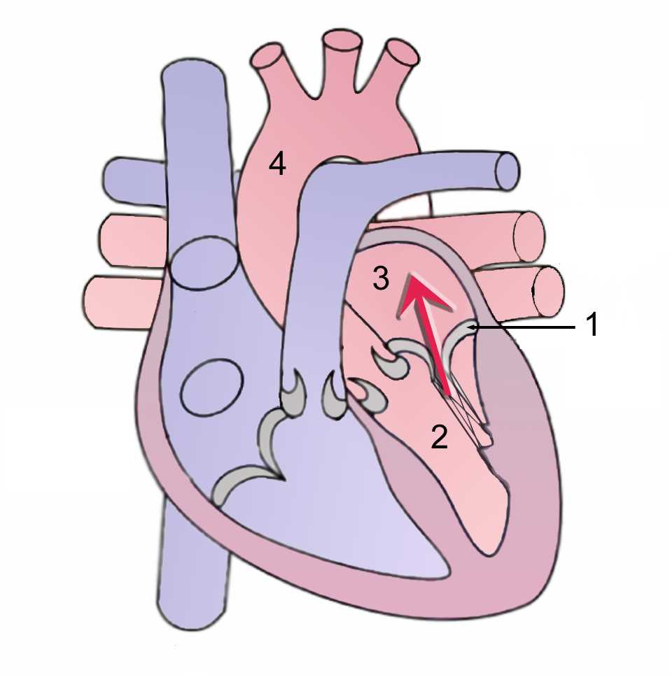 Mitral regurgitation/During systole, contraction of the left ventricle causes abnormal back flow (arrow) into the left atrium. (1)Mitral valve (2)Left Ventricle (3) Left Atrium (4)Aorta
