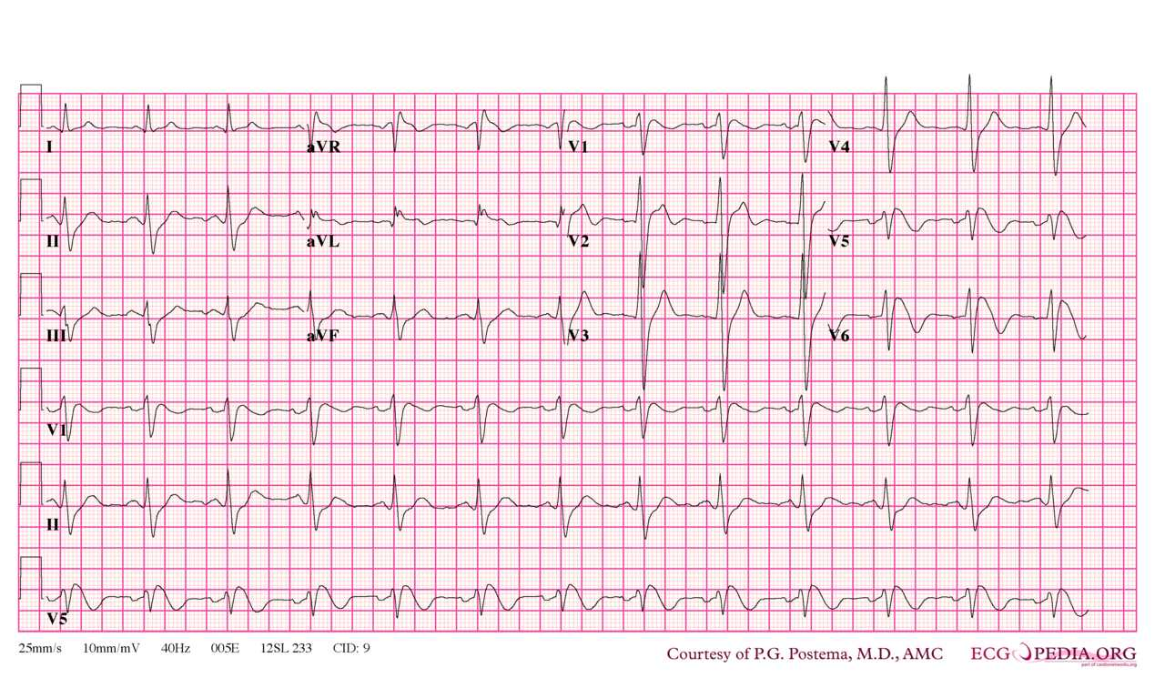Brugada syndrome type 1. Note that V5 is placed one intercostal space above V1 (V1 IC4) and V6 is placed one intercostal space above V2 (V2 IC3). Type I morphology is seen in V1, V1 IC3 and V2 IC3. Furthermore, there is a horizontal QRS axis, broad P waves, wide S waves in the lateral and inferior leads and fractionation of the QRS complex in III and aVL.