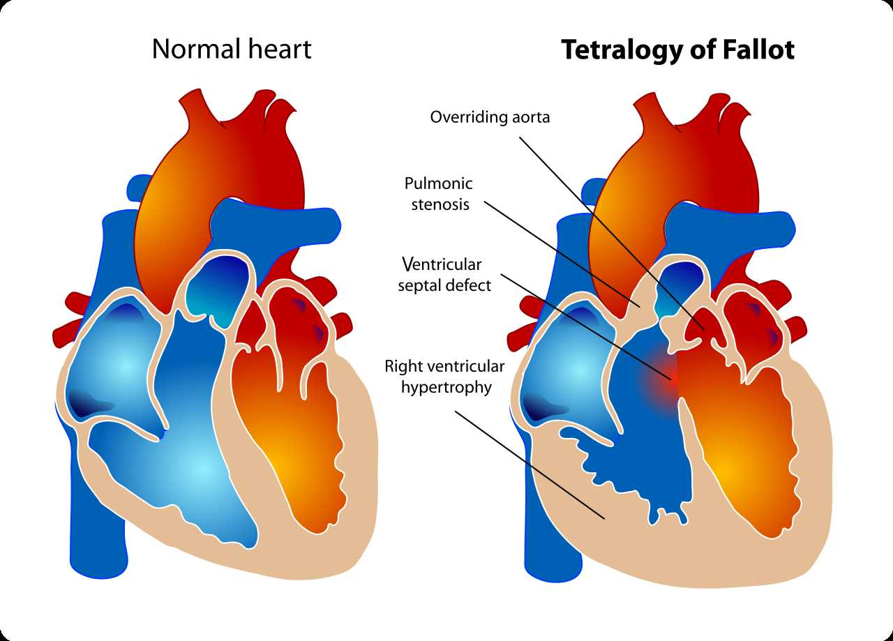 A diagram showing a healthy heart and one suffering from the tetralogy of Fallot, which constitutes four different malformations.