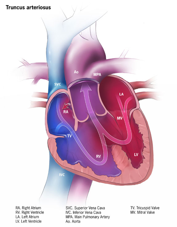 Illustration of Truncus Arteriosus, Heart