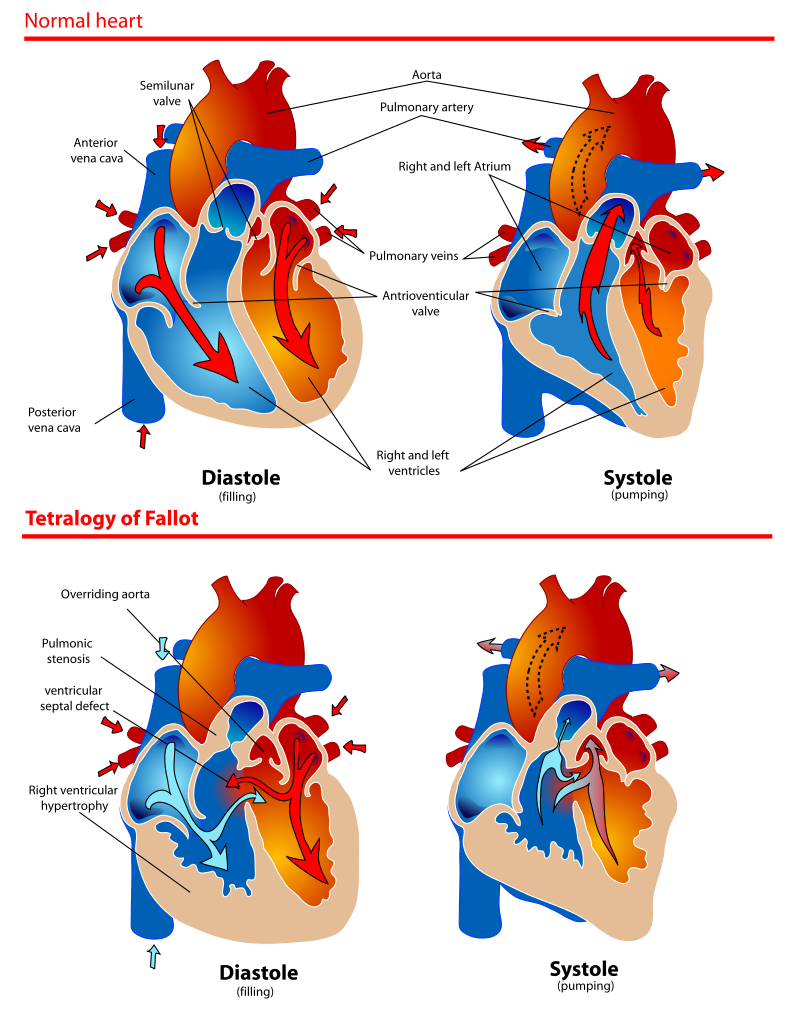 The diagram shows a healthy heart during pumping and filling. Also a heart suffering from Tetralogy of Fallot which are four different malformations and are usually known as Blue Baby Syndrome.
