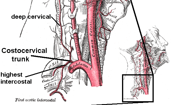 Costocervical trunk with branches. Right side. Deep Cervical Artery