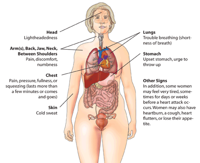Heart attack (myocardial infarction) warning signs in women.