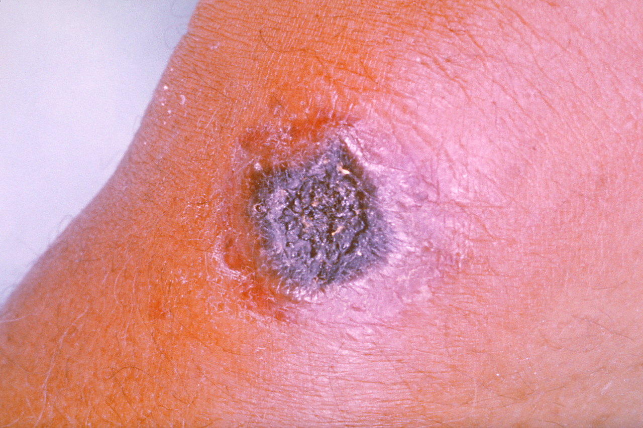 A skin lesion caused by anthrax.