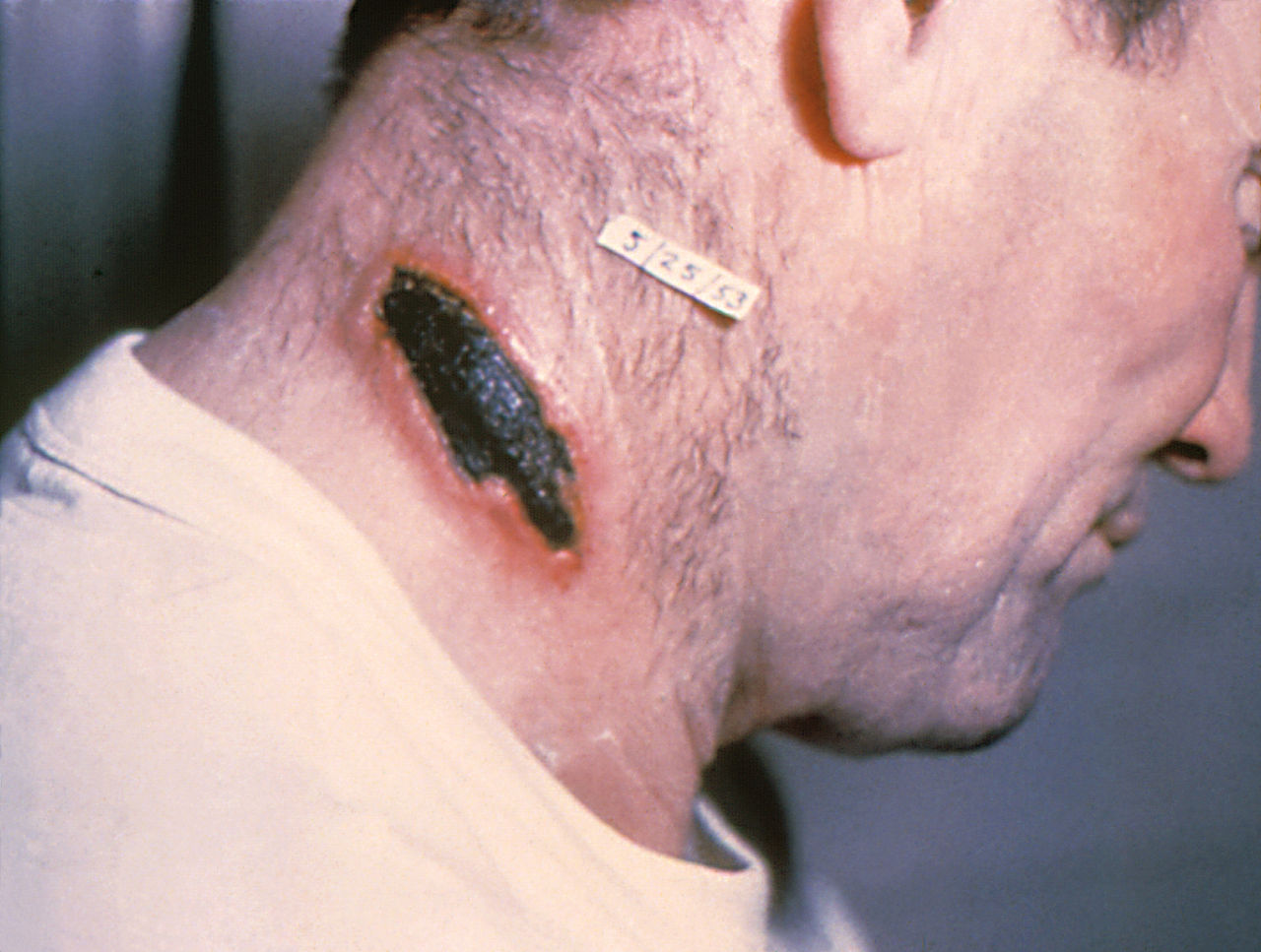 Cutaneous Anthrax lesion on the neck.