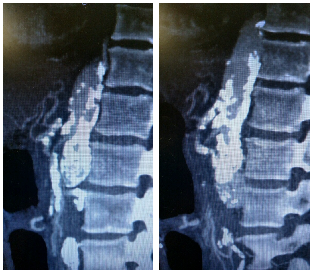 Sagittal view of CT angiogram showing severe atherosclerotic disease of the SMA and celiac artery.