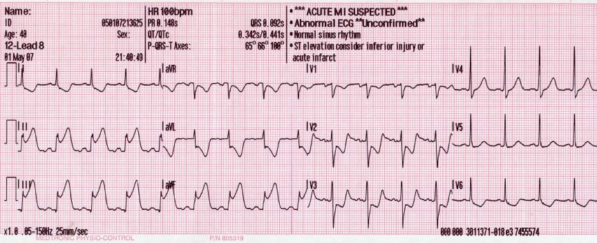An ECG showing pardee waves indicating acute myocardial infarction in the inferior leads II, III and aVF with reciprocal changes in the anterolateral leads.