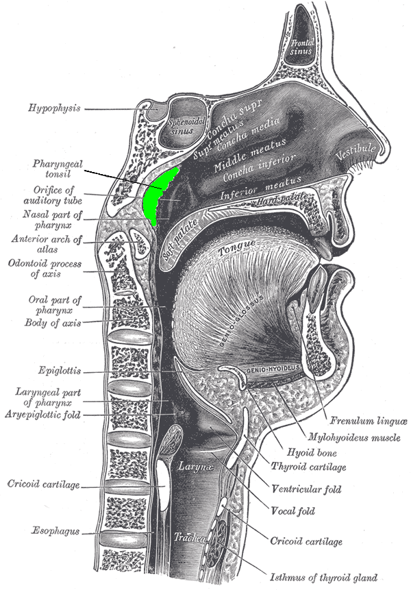 Sagittal Section of Nose, mouth, Pharynx, Larynx, Adenoid Hypertrophy, Pathology, Obstruction of the nasal airways
