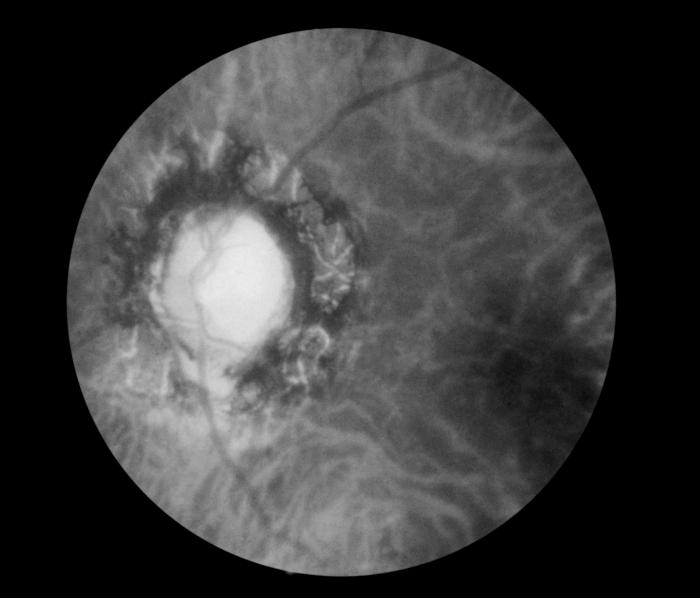 Fundoscopic image, effect of late neuro-ocular syphilis on the optic disk and retina, Pathology, Severe optic nerve atrophy, chorioretinitis, inflammation of the choroidal and neural layers of the retina
