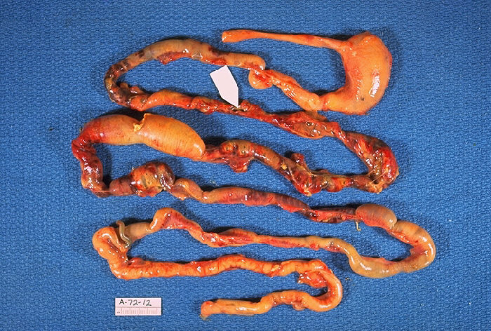 Gross Pathology, Neonatal, Necrotizing enterocolitis, Alimentary tract of infant, intestinal necrosis, pneumatosis intestinalis, perforation site shown by arrow