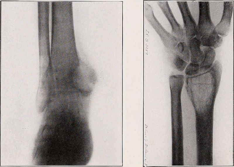 Tuberculosis Benign Bone Cyst, Radius, Ulnar, Central giant-of internal malleolus of tibia, cell tumor of lower end of radius