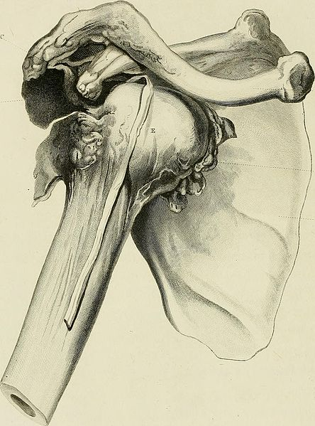Dislocation of the Humerus from the scapula, glenoid cavity; acromion above it, new socket for the head of the os humeri, fracture, clavicle, scapula, pectoral muscle