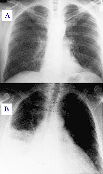 Combination of two x-rays, A represents a normal healthy Chest x-ray, B represents a Chest X-ray documenting Q fever pneumonia, Pathology