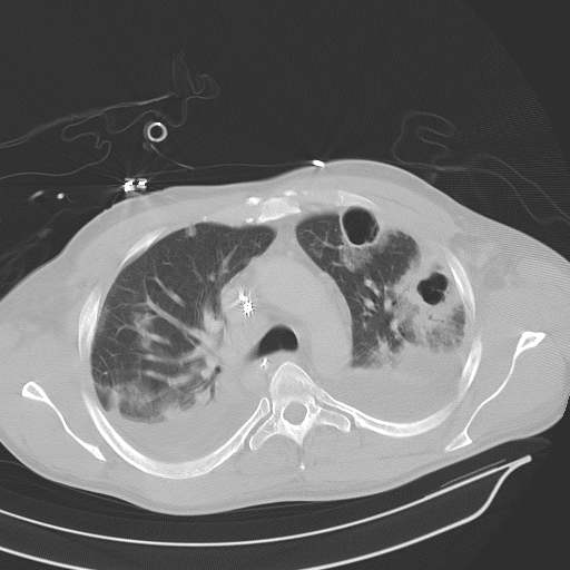 Computed Tomography Scan, CT Scan, showing bilateral pneumonia, abscesses, effusions, cavers, adult male