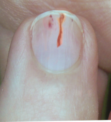 Splinter, Hemorrhage, Nail Anatomy, Finger