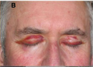 Systemic AL Amyloidosis, Pathology, Bilateral Periorbital purpura, Eyelids