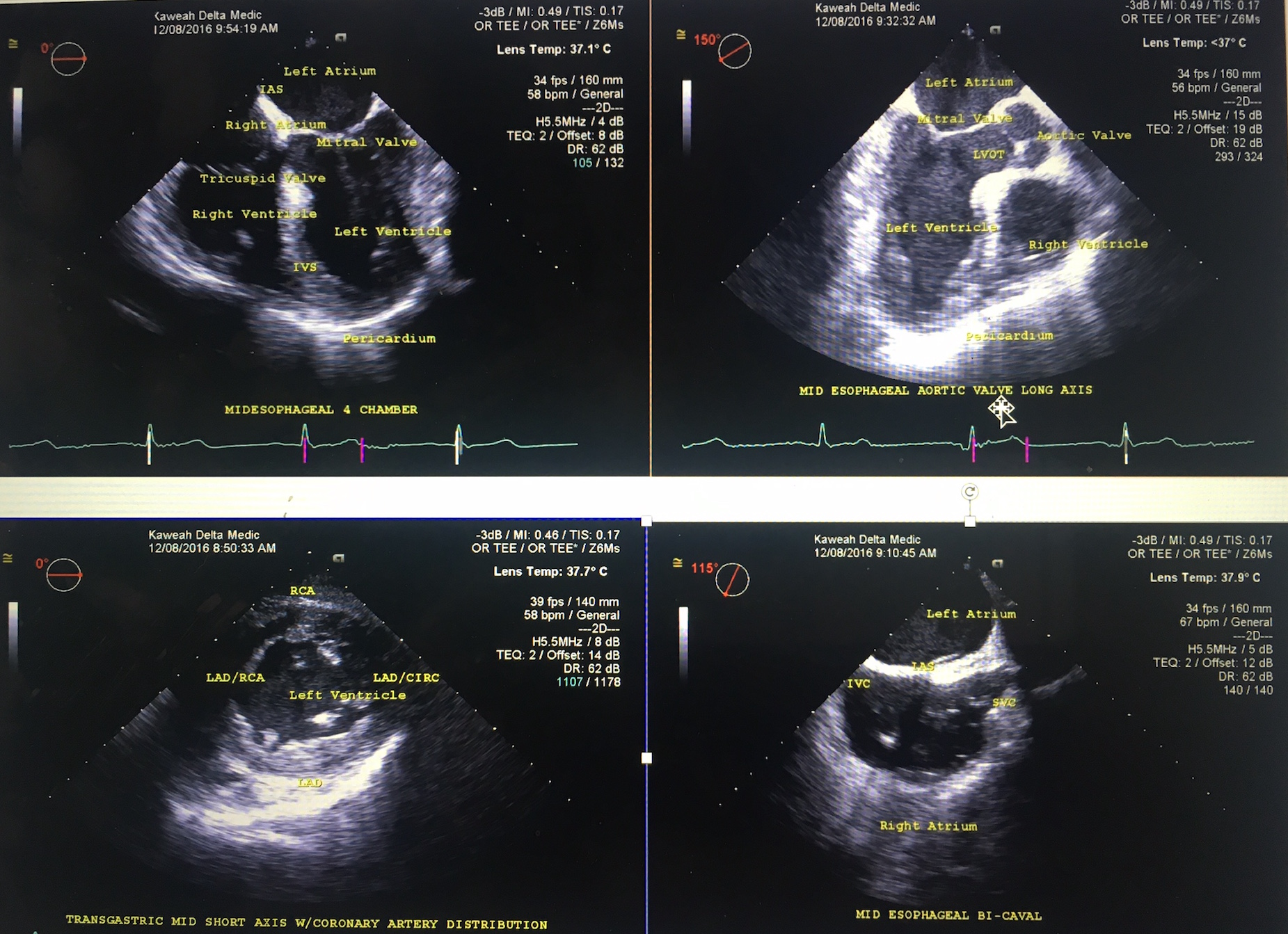 4 basic views to use in the patient who presents in cardiac arrest Image, Image 1; Midesophageal Four-Chamber view (MEFC), Image 2; Transgastric mid-papillary short axis view (TGMPSA), Image 3; Mid Esophageal Long Axis view (MELA) showing the LV in and outflow tracts, Image 4,4; Midesophageal Bicaval view (MEBC)