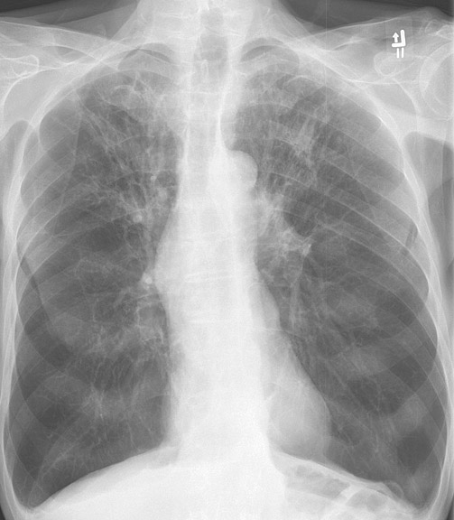 X-ray, Chest, Chronic Obstructive Pulmonary Disease, COPD, Anterior