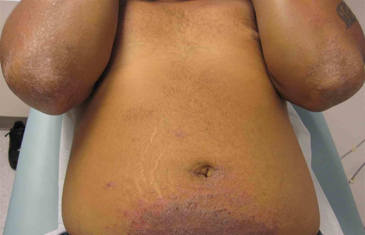 Classic presentation of nickel contact dermatitis involving lower abdomen and id reaction on elbows