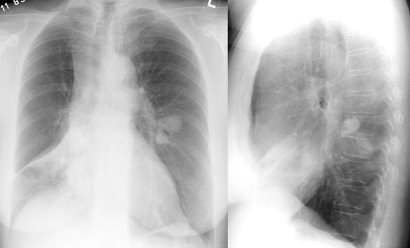 X-ray, COPD, Chronic Obstructive Disease, Asthma, Anterior, Lateral