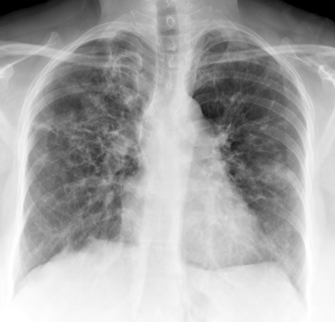 X-ray, COPD, Chronic Obstructive Pulmonary Disease, ABPA, Allergic bronchopulmonary aspergillosis, Poster Anterior,