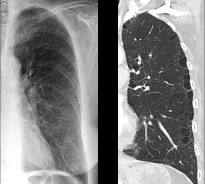 X-ray, COPD, Chronic Obstructive Pulmonary Disease, Subtle Paraseptal Emphysema