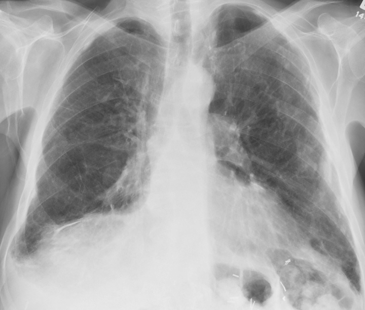 X-ray, Lungs, Asbestos, Anterior View