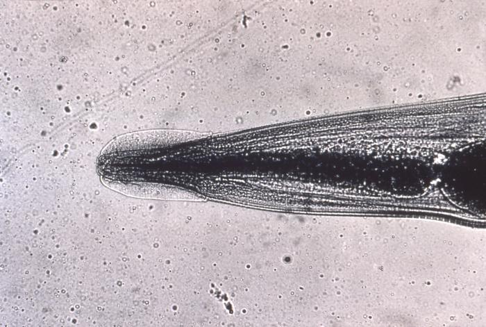 Head, Enterobius Vermicularis, Pinworm