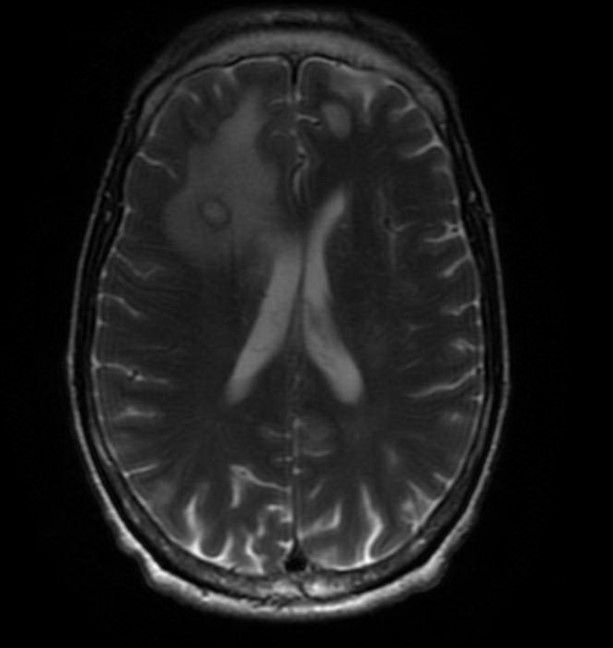 Transverse section of T2 Brain MRI with and without contrast showing a ring enhancing lesion with surrounding edema and minimal midline shift